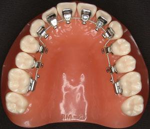 歯並びを改善する矯正治療